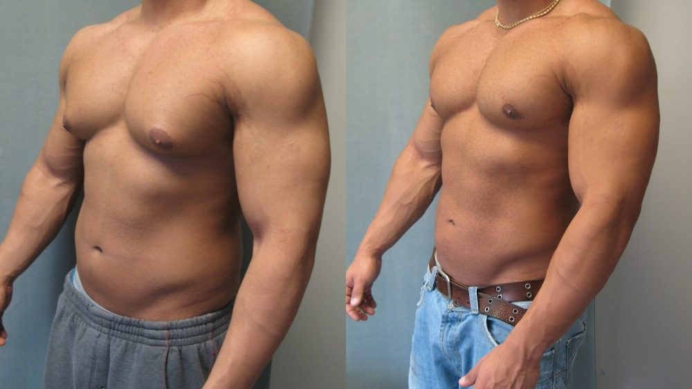 before and after gynaecomastia