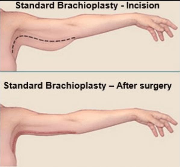 brachioplasty incision, brachioplasty upper arm incision, arm lift incision