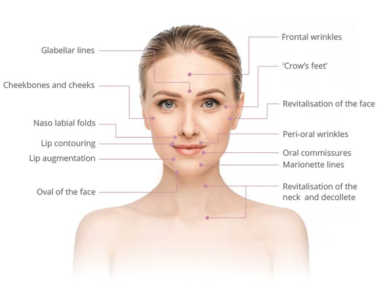 dermal fillers for different parts of the face
