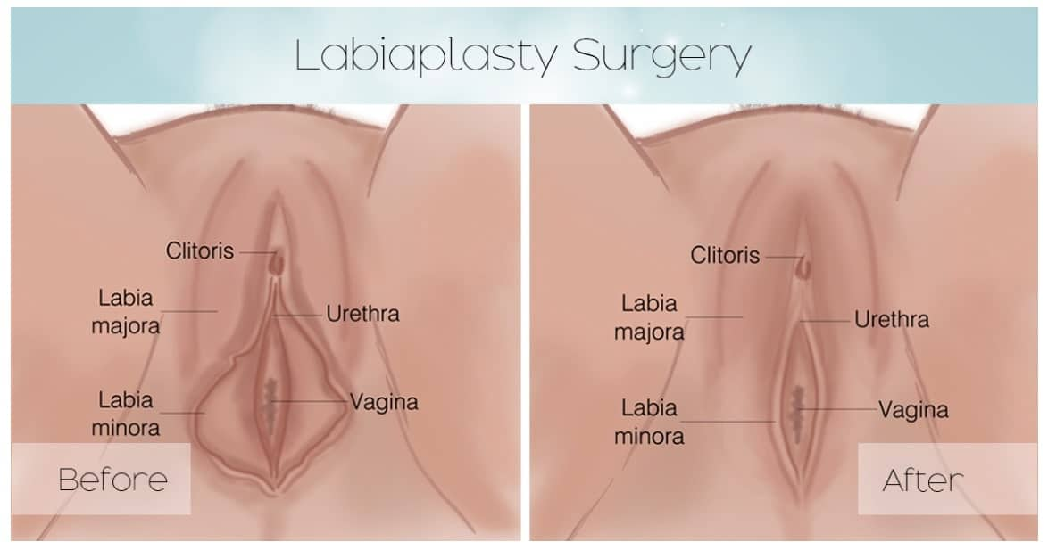 labiaplasty surgery, labiaplasty surgery diagram, labiaplasty before and after