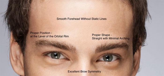 male forehead wrinkles, wrinkles
