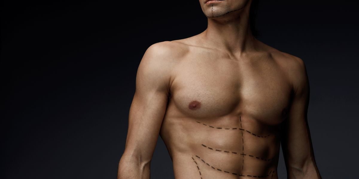 pectoral implants image of a man