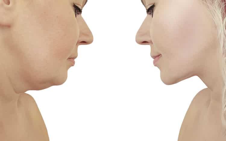 rhytidectomy, neck lift