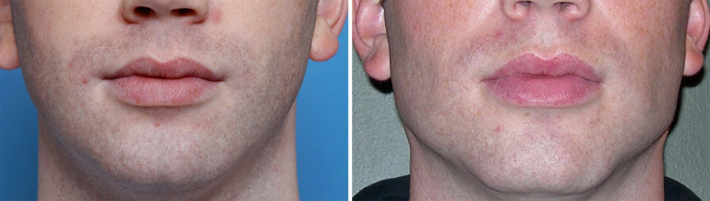 square chin implant