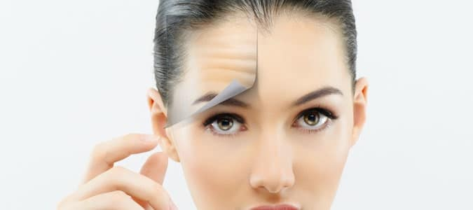 static and dynamic wrinkle reduction, wrinkle reduction, botox